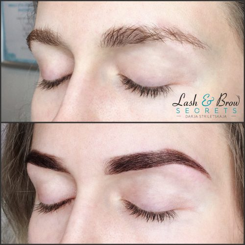 Before and after of both eyes with Eyebrow Architecture treatment
